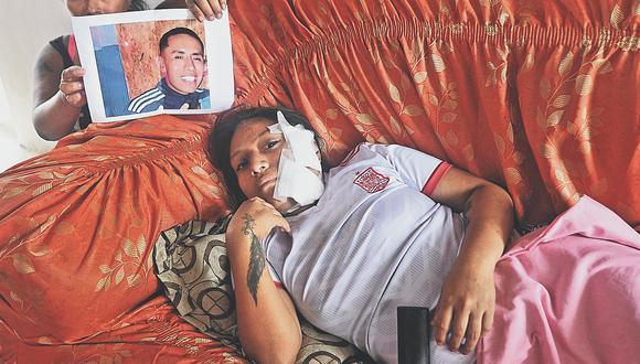 Mujer fingió estar muerta para evitar ser asesinada por su esposo