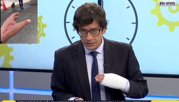 Tras el ataque de perro pitbull en un parque de Surco, el periodista Jaime Chincha apareció con la mano vendada durante los programas de RPP.