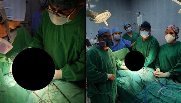 Chimbote: Médicos extirpan tres tumores gigantes a dos mujeres de 48 y 15 años (Foto: Hospital La Caleta)
