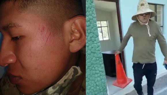 Arequipa: Militar acaba con herida en el rostro y denuncia que sujeto lo abofeteó   VIDEO