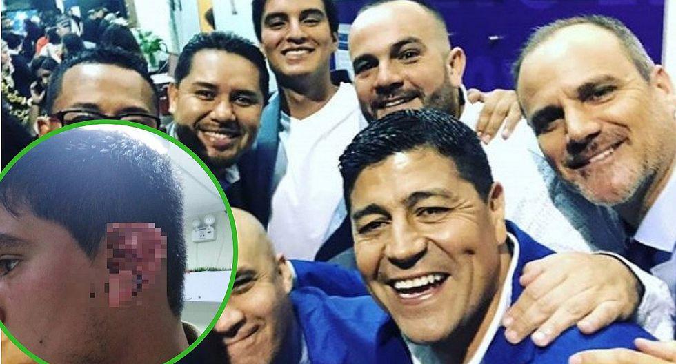 Extranjero golpea brutalmente a conocido periodista de Latina (FOTOS y VÍDEO)