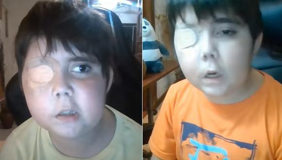 'Tommy' busca convertirse en un 'streamer' de YouTube. Su sueño puede ser posible gracias a la ayuda de las comunidades de gamers. (Foto: Difusión)