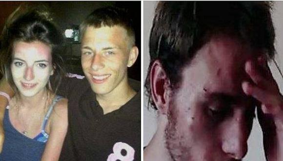 Hombre sufrió maltrato de su novia al punto que tenía miedo de morir (FOTOS)