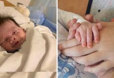 Bebé sonríe en el regazo de su madre, sin embargo esconde una triste historia | FOTOS