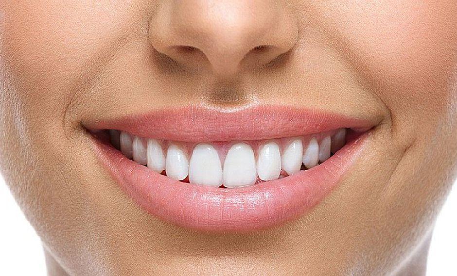 Salud Bucal: 4 consejos de oro para tener una sonrisa impecable