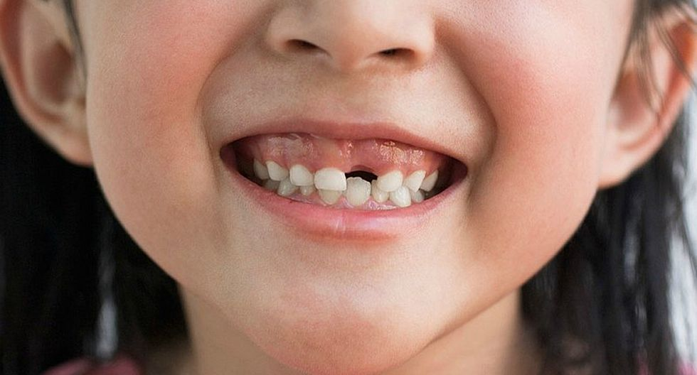 Test: Descubre si tu niño tiene una adecuada salud bucal