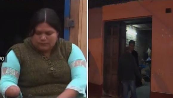 Mujer a quien amputaron manos y pies por presunta negligencia es víctima de la delincuencia (VIDEO)