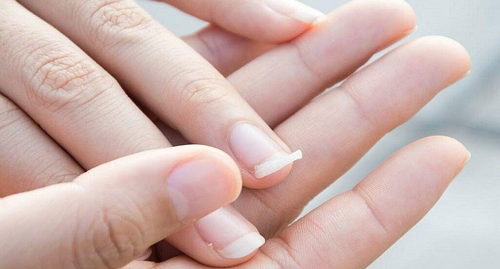 Se Te Rompen Las Uñas De Las Manos Con Facilidad 6 Consejos