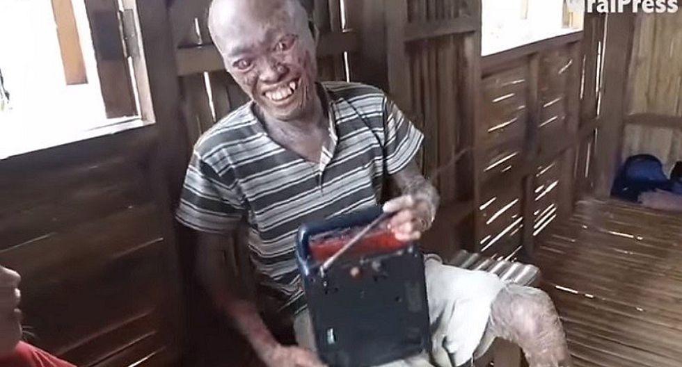 """YouTube: le dicen """"demonio"""" porque sufre extraña enfermedad en la piel (VIDEO)"""