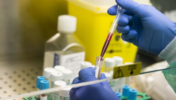 A medical worker handles blood samples as part of serological tests for COVID-19 on May 6, 2020 at the laboratory of the Tor Vergata Covid hospital in Rome, during the country's lockdown aimed at curbing the spread of the COVID-19 infection, caused by the novel coronavirus. (Photo by Tiziana FABI / AFP)