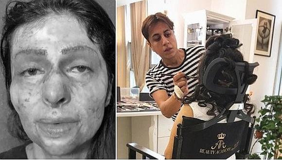 La transformación de una mujer con el rostro quemado en manos de un estilista