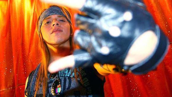 'Axl Rose' peruano: 'Calamaro' y el 'Zambo' están respaldados por productoras musicales