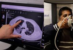 Fibrosis por Covid-19: jóvenes de 20 y 30 años presentan enfermedad pulmonar severa, advierte Essalud
