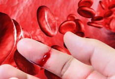 La hemofilia: La nueva fase del tratamiento llega a Perú
