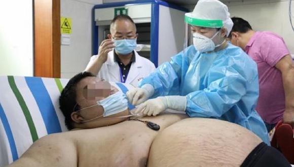 Hombre subió cerca 100 kilos durante la cuarentena en China. Foto: Weibo