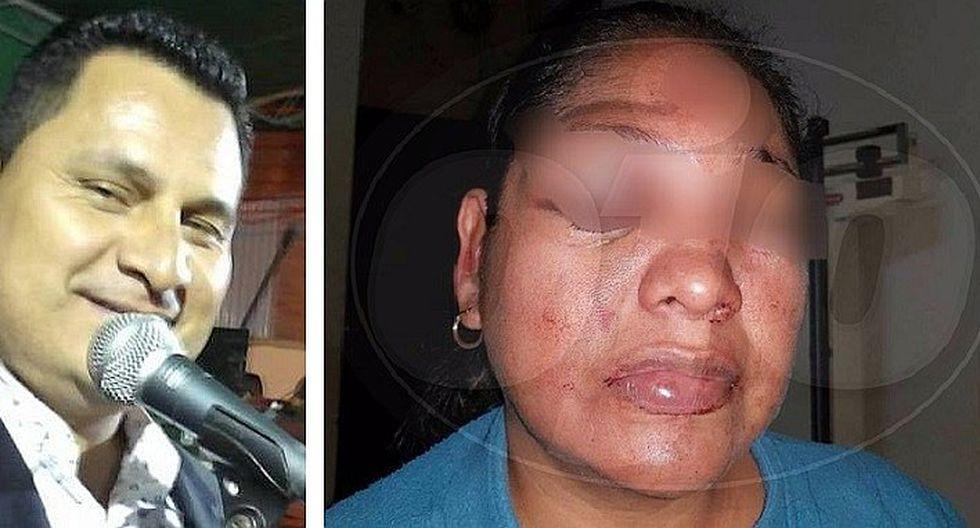 Caribeños de Guadalupe: ¡animador que desfiguró a su pareja fue puesto en libertad!
