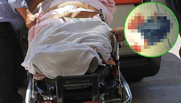 Ayacucho: Agreden brutalmente a hombre en partes íntimas y lo abandonan en la calle