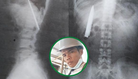 Un hombre se enteró que vivió más de un año con un cuchillo alojado en su pecho, muy cerca de sus pulmones. | Crédito: Viral Press / YouTube