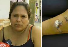 Mujer ataca con pico de botella a su vecina por presunta venganza