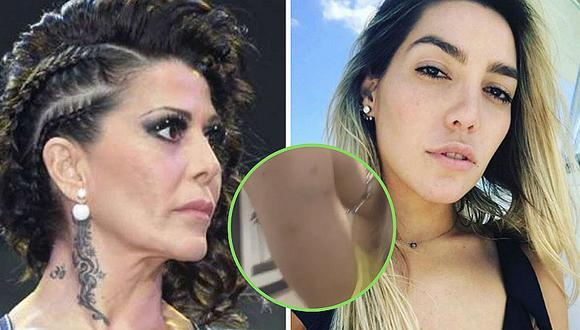 Frida Sofía muestra las marcas de los golpes que le habría hecho Alejandra Guzmán   VIDEO