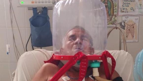 Junín: los cascos no necesitan de intubación ni sedación del paciente, por lo que permite mayor movilidad y comodidad del paciente.