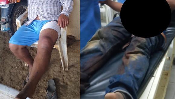 Hombre se recupera de las heridas en su domicilio (Foto: Difusión)