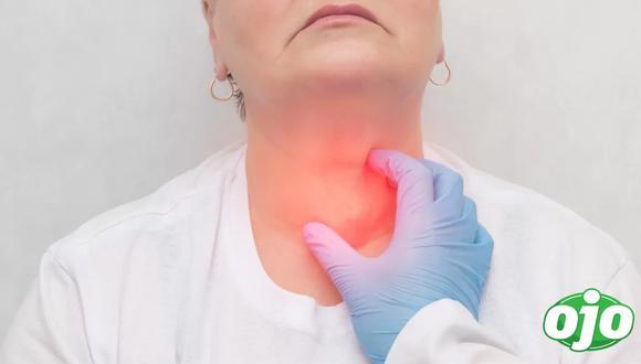 Entre los principales síntomas asociados a este mal se encuentran el cambio en la voz, un bulto en el cuello, dolor de garganta que no desaparece, explica el médico oncólogo,Mauricio León Rivera.