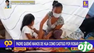 Padre quemó las manos de su hijita como castigo por robarle celular a su vecina | VIDEO