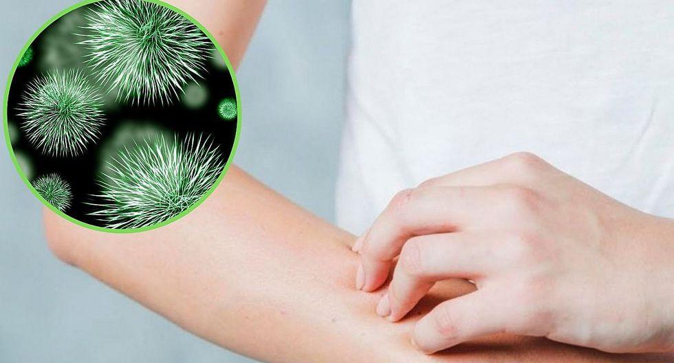 ¿Qué es la bacteria comecarne y cómo es posible un contagio?