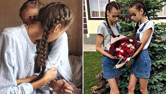 Hermanitas de 14 años son obligadas a bajar de peso, ahora tienen anorexia y luchar por vivir