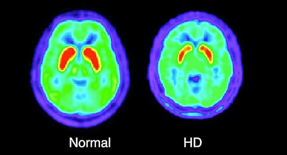 Activación de enzima permite aliviar la rara enfermedad de Huntington
