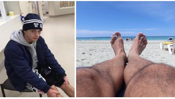 Faceboook: ¡Espeluznante! Joven se mete a la playa y casi pierde sus pies (VIDEO)