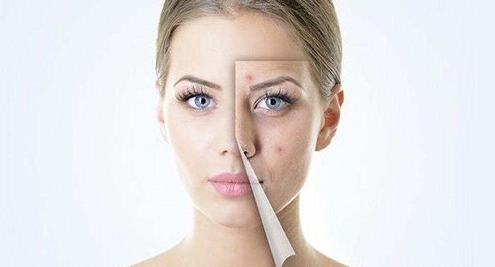 6 Tips para eliminar las molestas marcas de acné