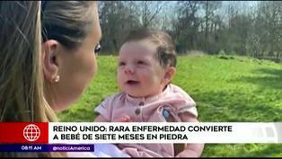 Bebé sufre extraña enfermedad que la convierte en 'piedra'