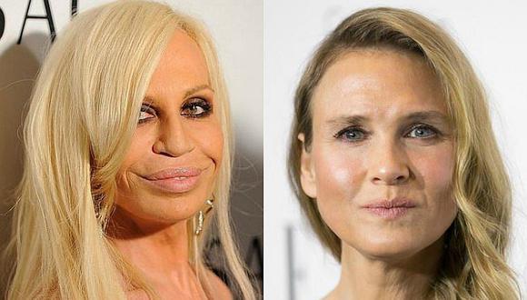 5 famosas que perjudicaron sus rostros por las cirugías