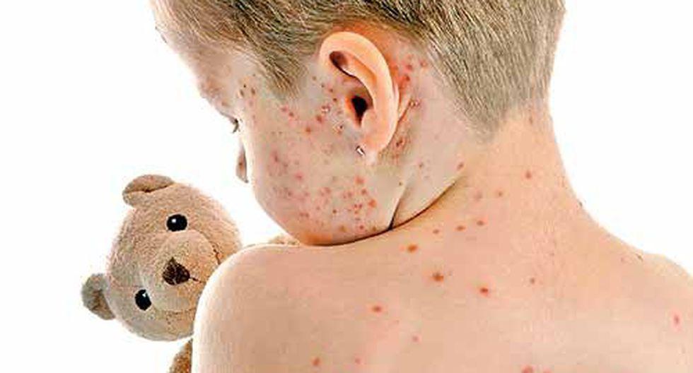 Tips caseros para aliviar la comezón de la varicela