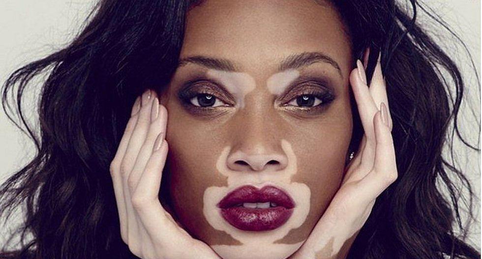 7 mentiras sobre el vitiligo que debes olvidar