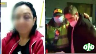 """Mujer queda desfigurada al ser brutalmente golpeada por su cuñado: """"yo me defendí"""", dijo el agresor"""