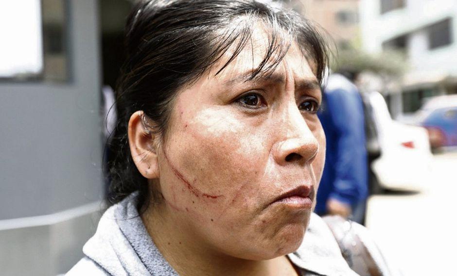 Mujer ataca a golpes y arañones a pasajeros del tren