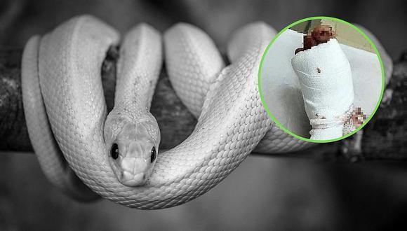 Compra pijama con apariencia de serpiente y esposo le fractura el pie del susto