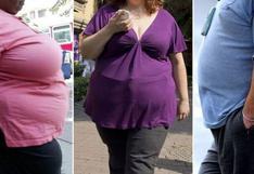 Covid-19: Vacuna podría ser menos efectiva en personas con obesidad