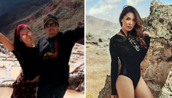Ex candidata al Miss Perú acusó a su pareja de haberle roto la clavícula (FOTOS)