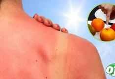 ¿Qué alimentos ayudan a proteger la piel de los rayos solares?