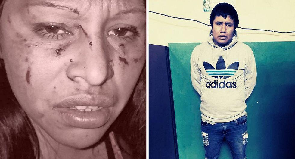 Mujer termina con el rostro desfigurado tras ser atacada por el padre de su hija y su nueva pareja